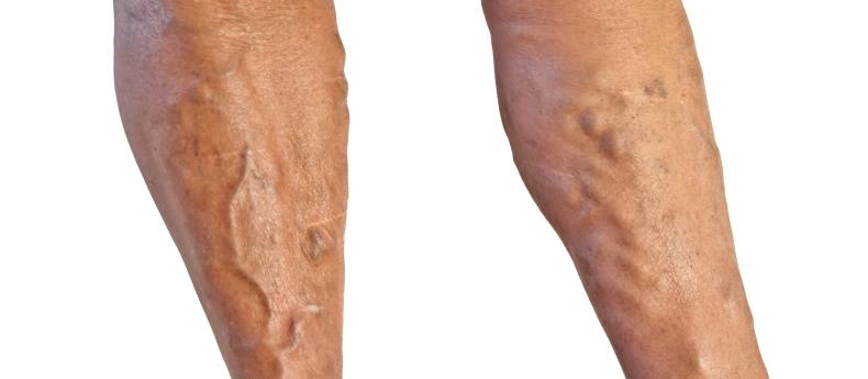 Traditional chinese medicine varicose veins naturally